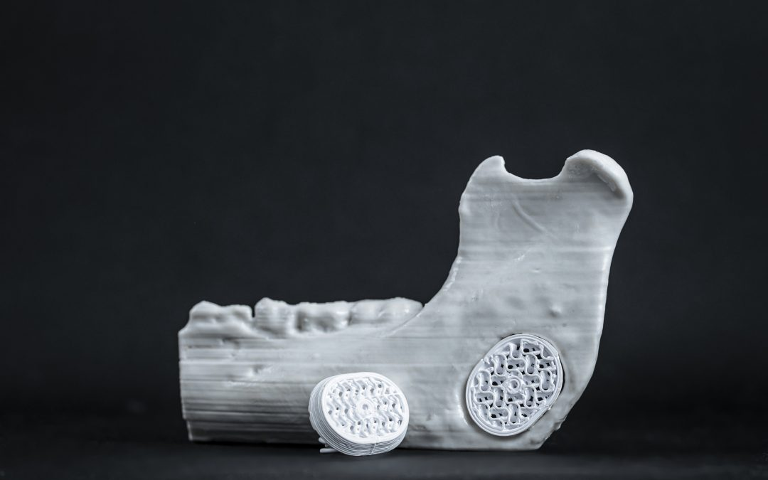 P3D Bone Implant Performs as Well as Predicted