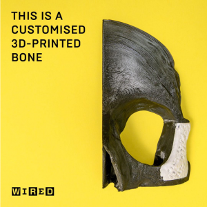 This is a customized 3D printed bone