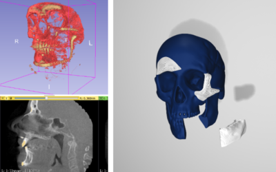 How 3D modeling and biomaterials can transform patients' experiences of bone replacement