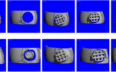 New research article: Treating mouse skull defects with 3D-printed fatty acid and tricalcium phosphate implants